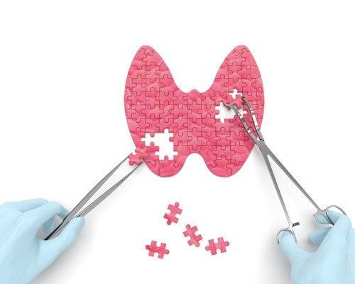 Когда стоит задуматься о здоровье щитовидной железы?