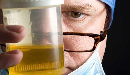 Неприятный запах у мочи: 8 возможных причин