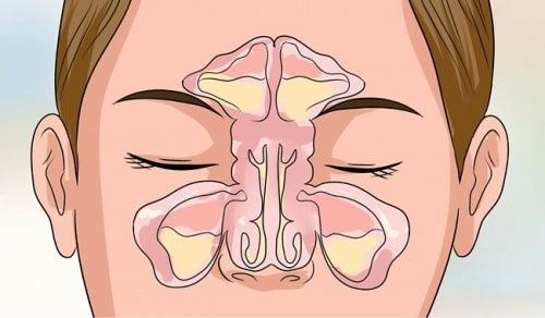 Нос и акупунктура