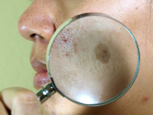 7 натуральных средств против пигментных пятен на лице