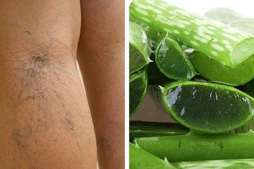 Варикоз и кровообращение в ногах