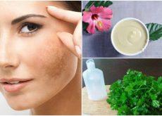 5 натуральных средств уменьшат меланоз