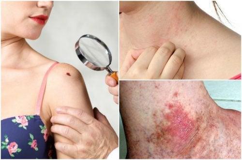 Рак кожи: 6 симптомов, которые не стоит игнорировать