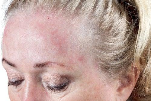 Спать с мокрыми волосами и дерматит