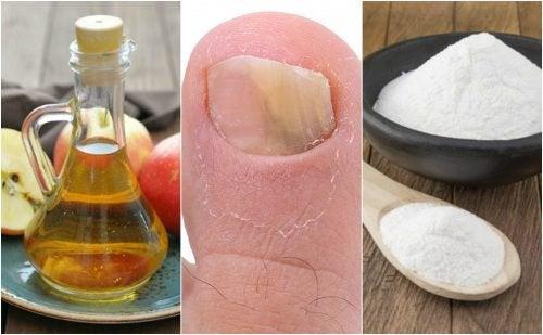 Как победить грибок ногтей при помощи уксуса и пищевой соды?