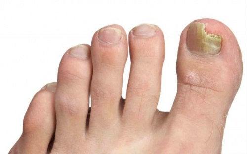 Кокосовое масло помогает бороться с грибком на ногах