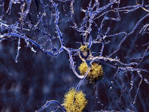 Куркума при болезни Альцгеймера