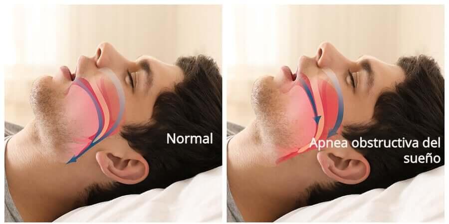 Апноэ