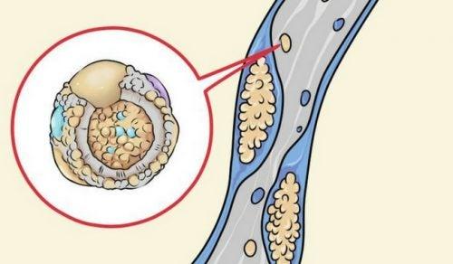 Какие продукты питания помогают чистить артерии?
