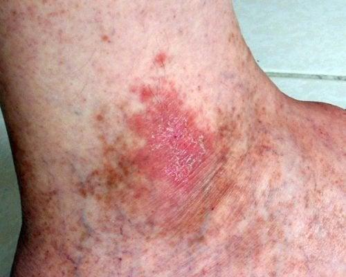 Рак кожи и язвы