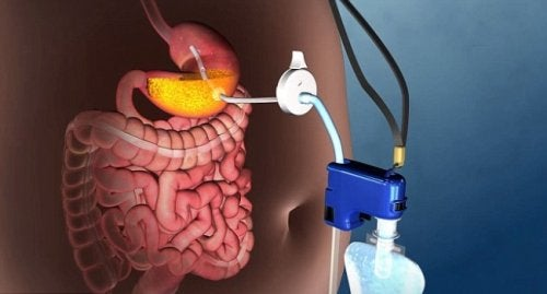 Инновационное устройство поможет побороть тяжелое ожирение без хирургического вмешательства!