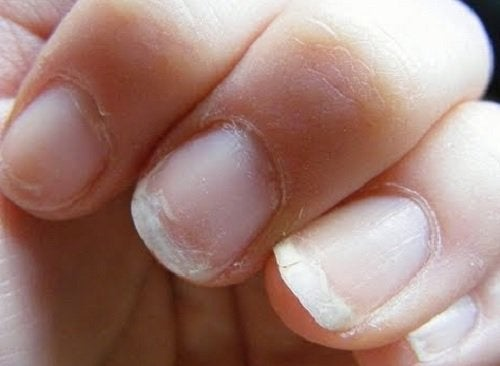 Нарушения кровообращения и хрупкие ногти