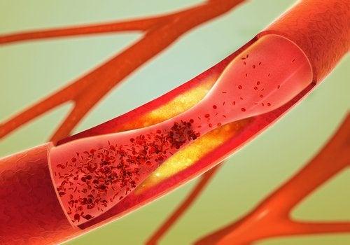 12 отличных продуктов для очищения артерий