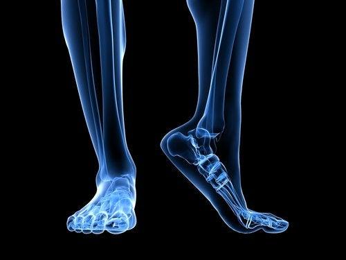 Плантарный фасциит и ноги