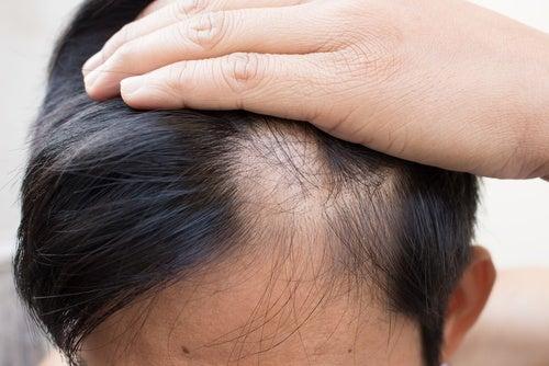 Беспокоит выпадение волос? 6 натуральных средств от облысения!