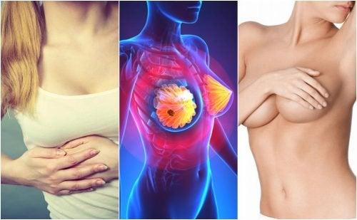 9 симптомов рака груди, о которых должна знать каждая женщина!