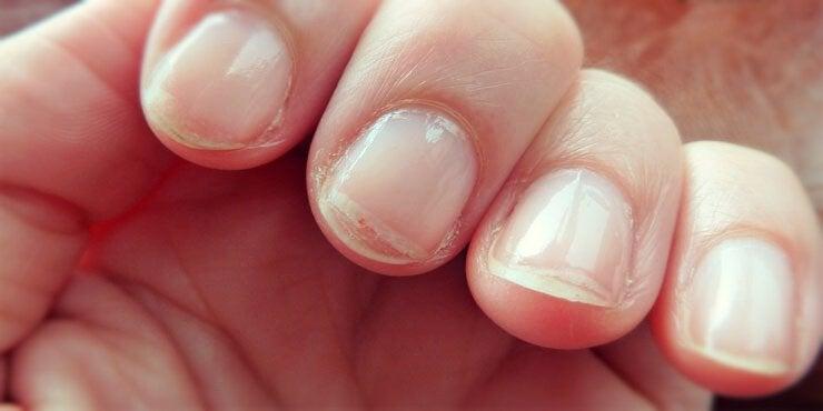 Ломкие ногти на руках