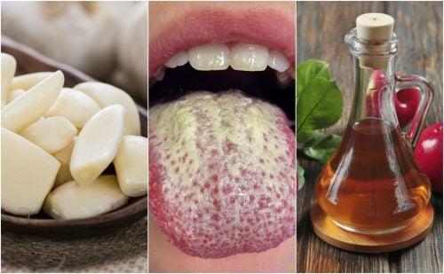 6 натуральных средств против размножения кандиды
