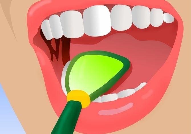 Неприятный запах изо рта? Вот 5 отличных способов справиться с ним!