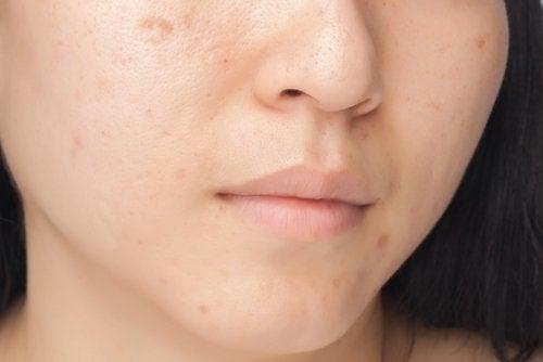 Здоровая кожа: 7 пищевых привычек, которые вредят вашему лицу