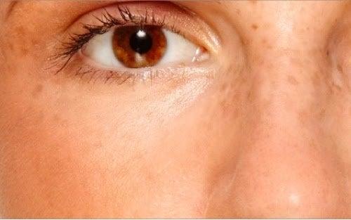 Синдром поликистоза яичников и пятна на коже