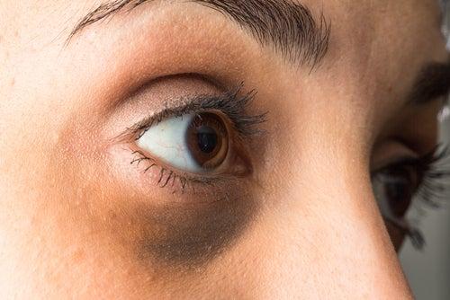 Тёмные круги под глазами и нарушения гормонального фона