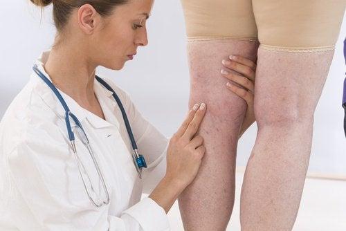 Воспаление в венах и витамин D