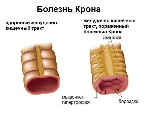 Аутоиммунные заболевания и болезнь Крона