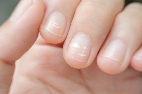 Полоски на ногтях и дефицит цинка