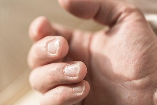 Полоски на ногтях и дефицит магния
