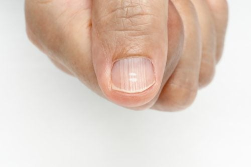 Полоски на ногтях: откуда они берутся и как от них избавиться?