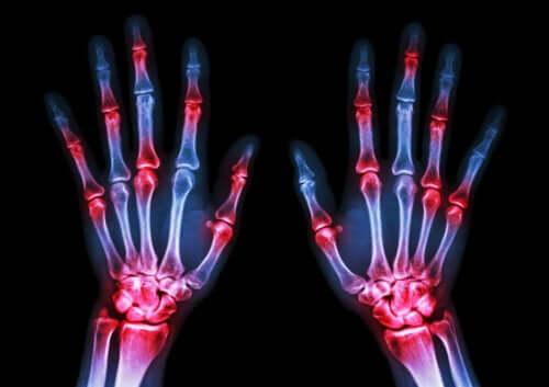 5 фактов, которые стоит знать о ревматоидном артрите