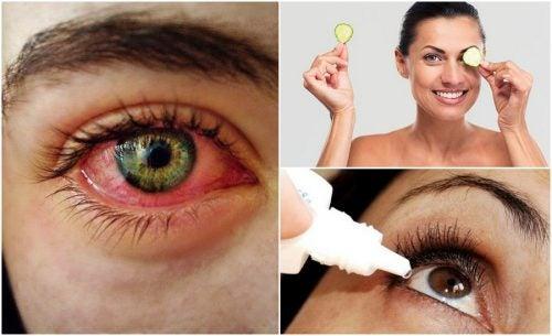 Синдром сухого глаза: как бороться с ним при помощи натуральных средств?