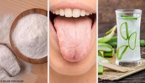 Белый налёт на языке? Попробуйте эти 7 натуральных средств!