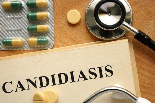 Вагинальный кандидоз: причины, симптомы и лечение