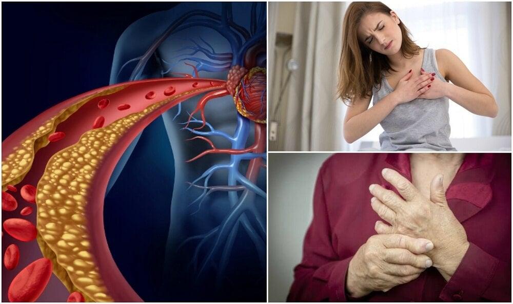 Повышенный уровень холестерина в крови: проверьте по этим 10 симптомам!