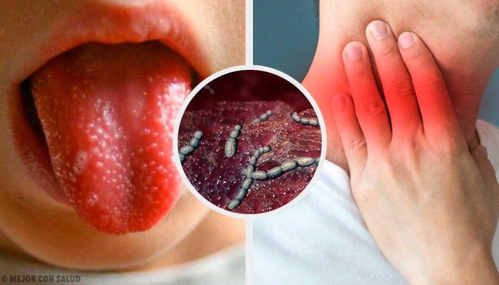 Скарлатина, или алая лихорадка: что нужно о ней знать?