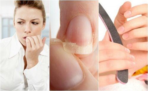 Ломкие ногти: 8 основных причин