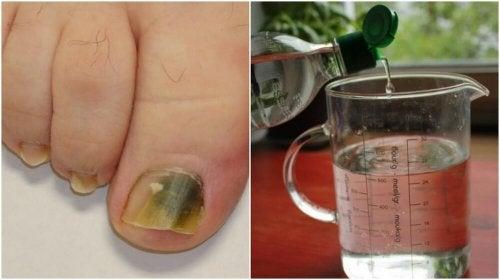 Грибок ногтевой пластины? Этот рецепт обязательно поможет!