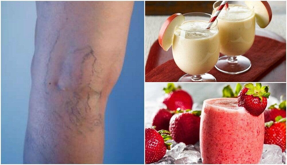 Эти 5 коктейлей помогут уменьшить варикоз и улучшить кровообращение!