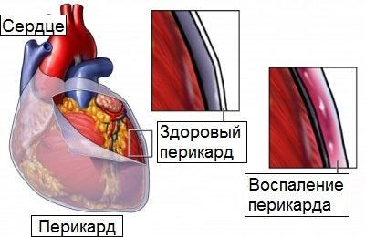 Воспаление перикарда и покалывания в груди
