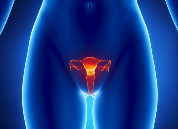5 побочных эффектов рака яичников