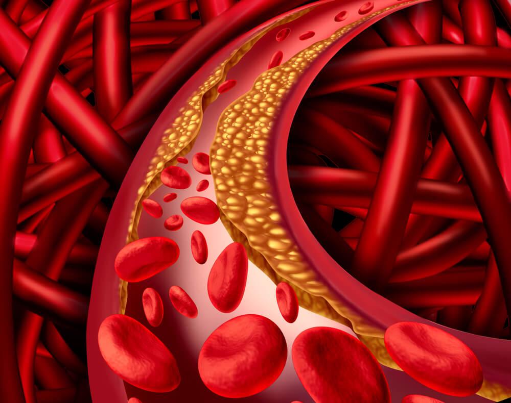 Мандарины изолируют холестерин