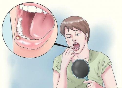 8 натуральных средств, чтобы вылечить афты во рту