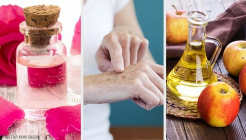 8 натуральных средств, способных осветлить кожу рук