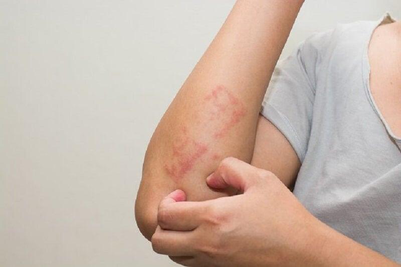 Лейкемия и кожа
