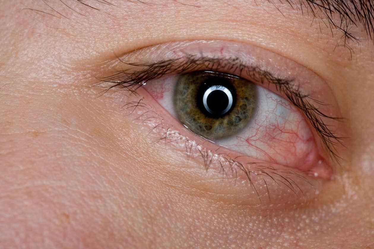 Опухоли глаз