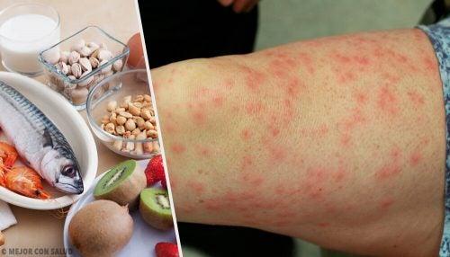 Распространённые пищевые аллергены и продукты для их замены