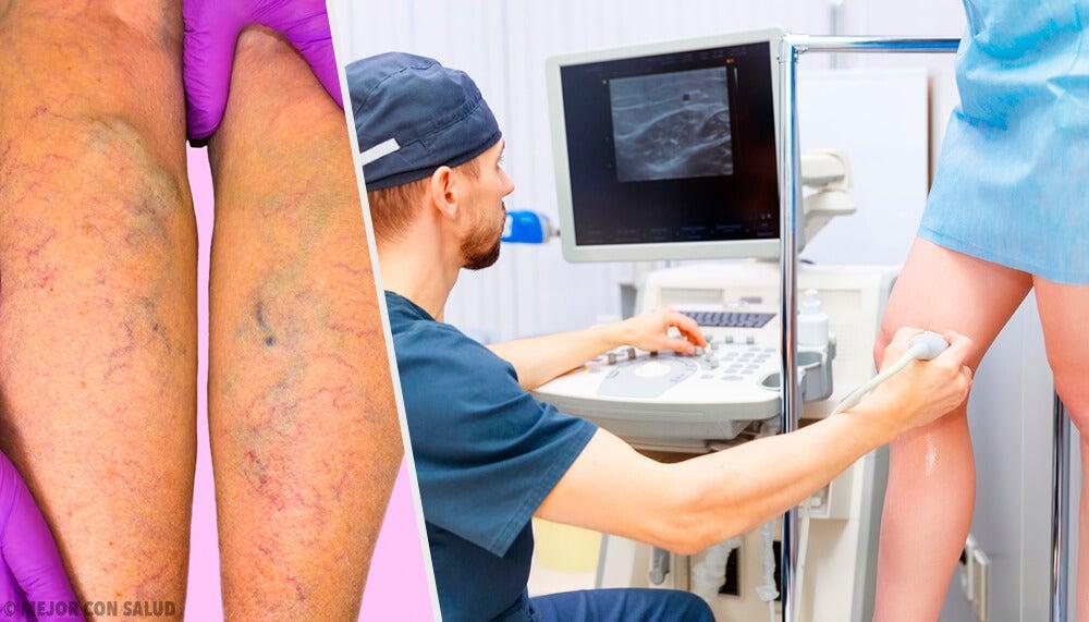 Как предотвратить и вылечить варикоз?