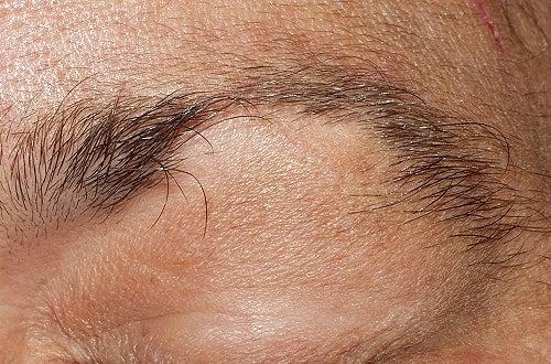 Выпадение волос и сердечный приступ